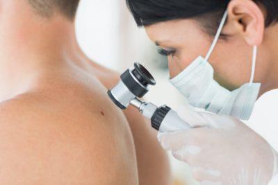 Dermatolog | Badanie dermatoskopowe